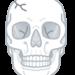 【衝撃!】頭蓋骨をなくした男(画像閲覧注意)